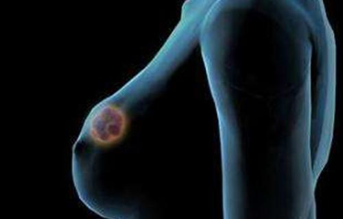 The Breast Has Its Own Microbiome--and the Mix of Bacteria Could Prevent or Encourage Cancer